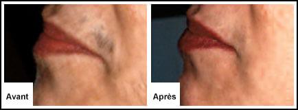 Traitement Laser Lèvre supérieure - Epilation laser 77 Chessy Derma Laser