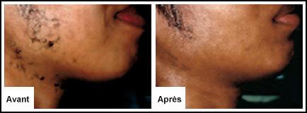 Traitement Laser Visage - Epilation laser 77 Chessy Derma Laser