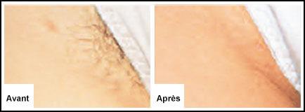 Traitement Laser Maillot - Epilation laser 77 Chessy Derma Laser