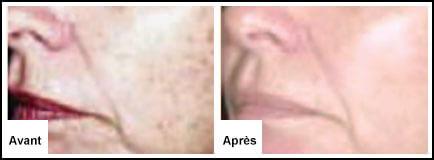 Traitement Laser facial : Peau endommagée par le soleil - Epilation laser 77 Chessy Derma Laser