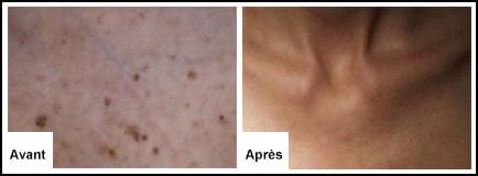 Traitement Laser : Lésions pigmentaires - Epilation laser 77 Chessy Derma Laser